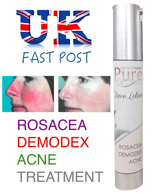 PURE Face Lotion ROSACEA TREATMENT Demodex Liquid Cream - Reduce Redness