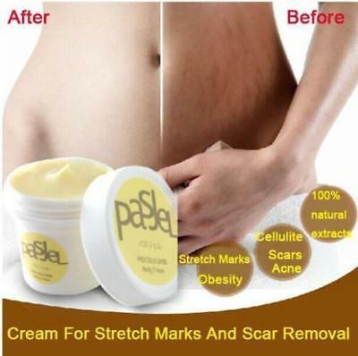 Pasgel - Powerful Stretch Mark & Anti Ageing Cream - Made in Thailand !