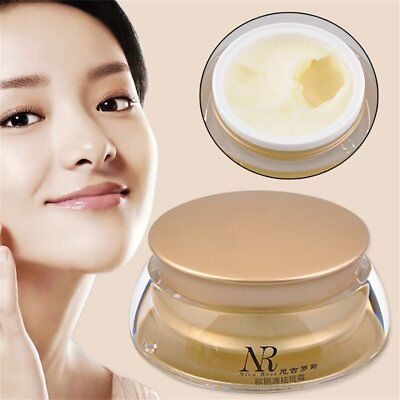 Effective Freckles Stain Nico Rose Pregnacy Melasma Face Remove Plaque Cream  VC