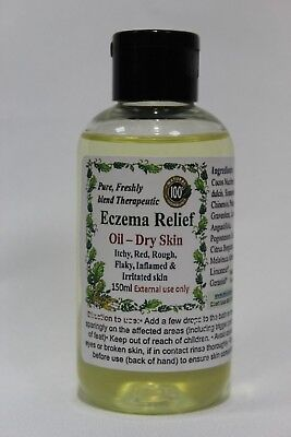 Eczema Relief Massage oil – For itchy, irritated, flaky, red, rough and dry skin