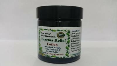 100% pure freshly blended Eczema Relief Gel - All Skin types