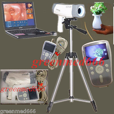 Digital Electronic Colposcope video SONY Carema800,000 pixels LED Handle +Tripod