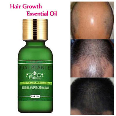 Anti Hair Loss Treatments Regrowth Natural Extract Oil Products for Men Women
