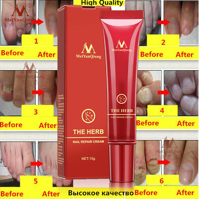 Nail Treatment Anti-fungal Repair Cream Chinese Herbal Nail Fungus Infection 15g