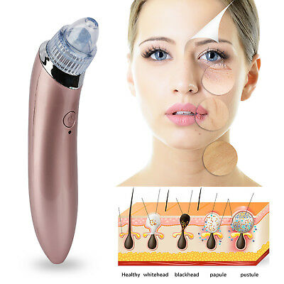 New Electric Skin Facial Blackhead Cleanser Care Vacum Acne Cleaner Pore Remover