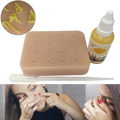 Peach Pimple Popping Funny Toy Popper Remover Stop Picking Your Face Pimples