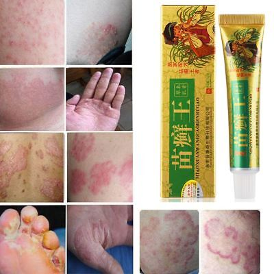 Herbal Formula Psoriasis Treatment Eczema Dermatitis Cream SkinItching Relief fr