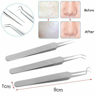Blackhead Acne Pimple Popper Extractor Remover Tools Set Stainless Steel 3pcs BS
