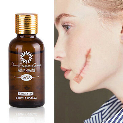 10/30ml Ultra Brightening Spotless Oil Skin Care Natural Pure Remove Ance
