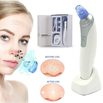 Electronic Blackhead Remover Vacuum Suction Facial Acne Pore Cleaner Extractor
