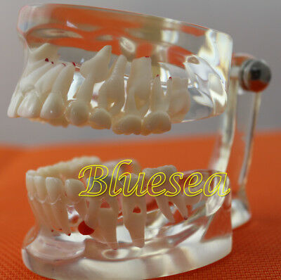 Dental Teach Study Tooth Model Clear Mixed Age Permanent Dentition Teeth Model