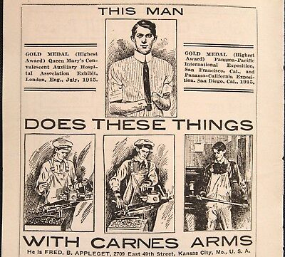Carnes Artifical Limbs Company Ad Early Prosthetics - 1916 Medical Print Ad