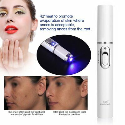 KINGDOMCARES Blue Light Therapy Acne Laser Pen Scar Wrinkle Removal Device H⊥