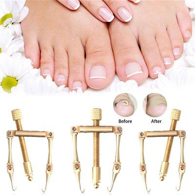 Pro Ingrown Toenail Toe Nail Correction Tool Manicure Clipper Pedicure TW