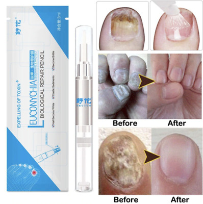 Advanced Fungal Nail Natural Repair Magic Pen 70% OFF TODAY ONLY