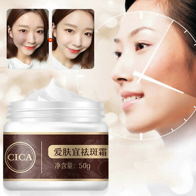 Facial Freckle Remove Cream Spot Face Care Whitening Scar Repair 50g Treatment