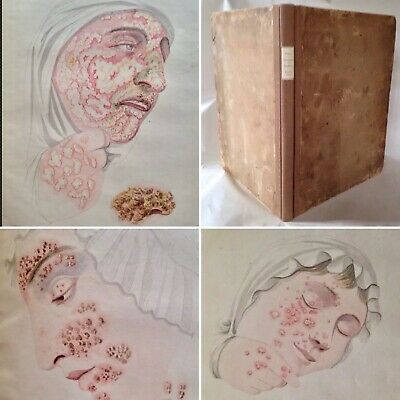 1829 Small Pox Cow Pox Chicken Pox Diseases Medicine By John Fisher