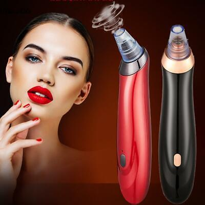 Electronic Blackhead Remover Vacuum Cleaner Facial Acne Extractor U8HE