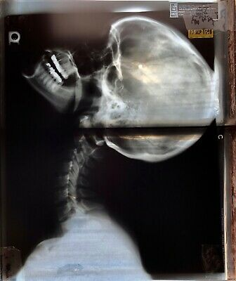 PHOTOGRAPH PICTURE-UNIQUE-FAMILY HUMAN HAND MIDDLE FINGER ORIGINAL X-RAY ART