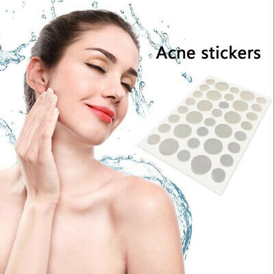 Acne Dot Hydrocolloid Spot Treatment -Clear Zit Blemish Oily Skin Pimple Patches