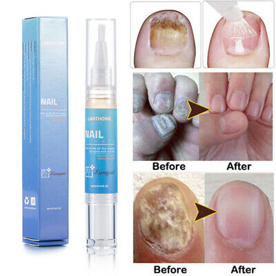 Nail Fungus Treatment Rehydration Solution Pen Anti Fungal Finger Toe Nail Care