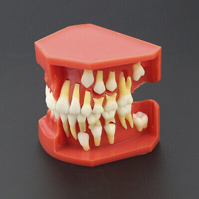 Deciduous Teeth Permanent Tooth Alternate Demonstration Study Tooth Teach Model