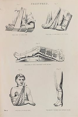 Fractures First Aid Slings -  Antique B/W Print Lithograph - c19th Encyclopaedia
