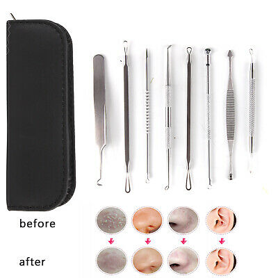 8Pcs Blackhead  Remover Tool Kit  Extractor Pimple Comedone Acne Spot Popper