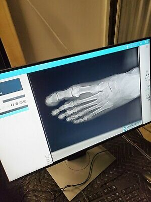 podiatry xray machine digital