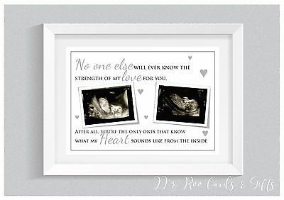 A4 Personalised Print - Baby Scan Photo Nursery Decor Wall Art Gift Unframed