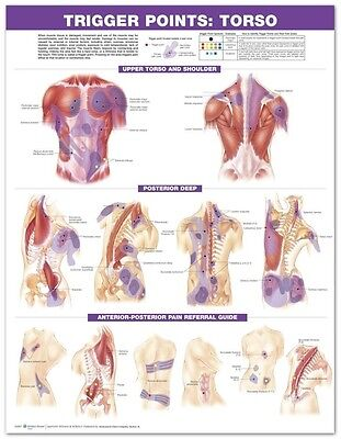 TRIGGER POINT TORSO (LAMINATED) POSTER (66x51cm) ANATOMICAL CHART NEW