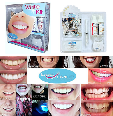 "WHITE KIT ""Best Smile®"" -sbiancamento Dentale Denti Cosmetico-efficacia in 10mn"