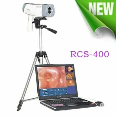 Digital Video 800,000 SONY Camera Electronic Colposcope [Tripod+Software] Newest