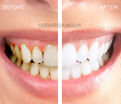 3-D Professional Teeth Whitening Pouches Bleaching Whitestrips Strips Top Result