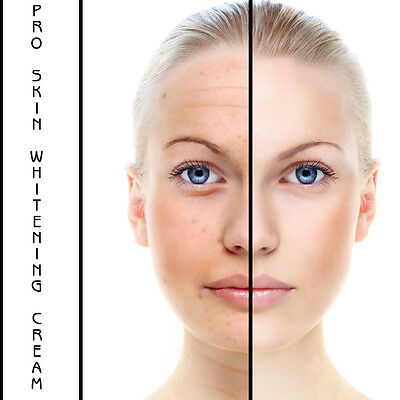 SKIN WHITENING CREAM For Men or Woman you can have Whiter Skin safely