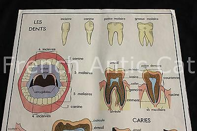 Ancienne affiche Dents carie email molaire Digestion intestin foie Dentiste