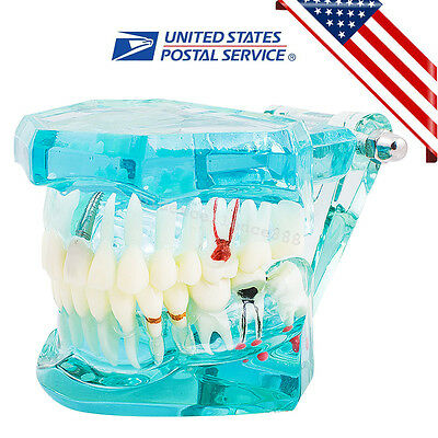 Dental Teeth Model Implant Disease Transparent Adult Pathological Study Student