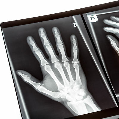 Collection of X-rays of Human Hands