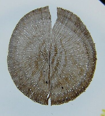 Antique Microscope Slide by Watson/Wheeler. Root of Ash Tree. Fraxinus excelsior
