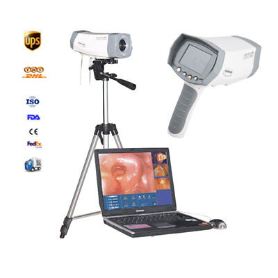 New Video Electronic Colposcope Electron Vagina Mirror+Color Sony Camera+Tripod