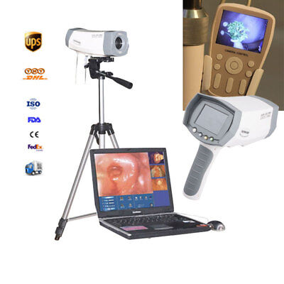 Video Electronic Colposcope Vagina Mirror+Sony Camera+LED Handle+Tripod Medical
