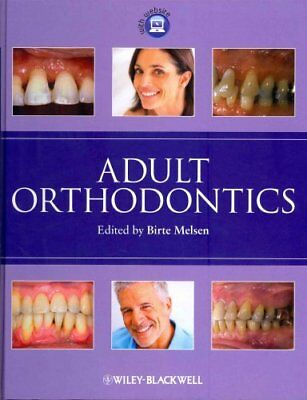 Adult Orthodontics by Birte Melsen 9781405136198 (Hardback, 2012)