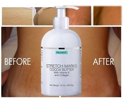 Best Scar Removal-Cream forOld-Scars Stretch Mark Removal Cream for Men & women