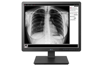 "LG 1.3 MP 19"" Radiology/Fluoroscopy Clinical Review Monitor 19HK312C-B And Stand"