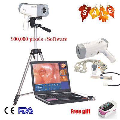 Portable Digital Electronic SONY Imaging Video Vaginoscopy Colposcope Tripod A+