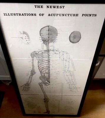 Antique Anatomical Acupuncture Illustration From 1930/40s