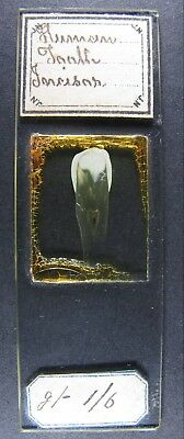 Antique Microscope Slide by Norman. Human Tooth. Incisor.