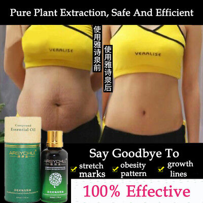 Stretch Marks Removal Essential Oils Pure Natural Stretch Marks Remover Obesity