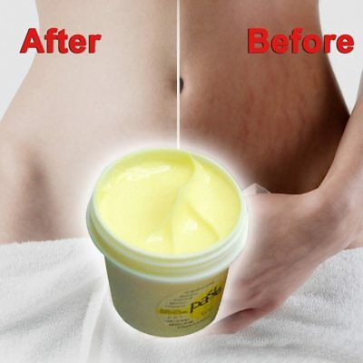 Thailand Skin care Body Cream Remove Stretch Marks Treatment Postpartum Repair