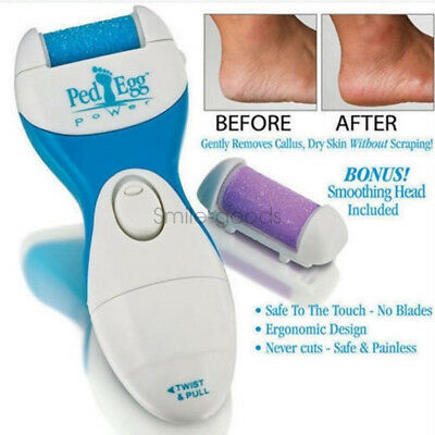 Ped Egg Perfect Electronic Pedicure File Foot Callus Remover